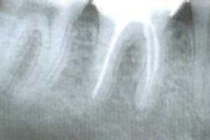 im Röntgenbild nachher