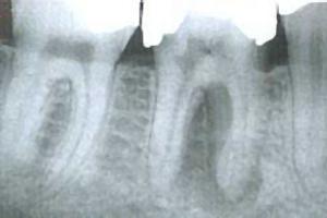 im Röntgenbild vorher